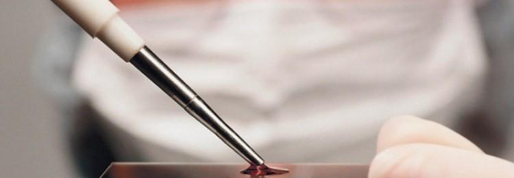 Симптоматика и лечение клостридиоза КРС