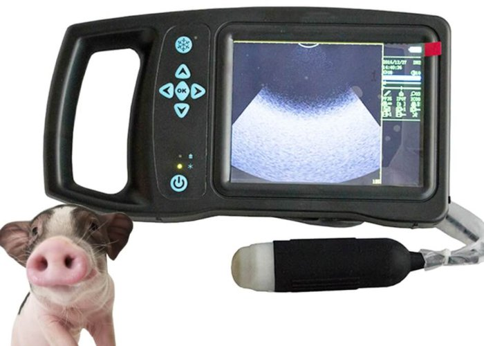 Сканер для ультразвукового обследования