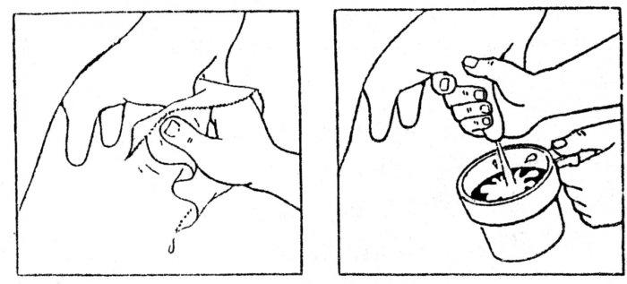 Гигиена молочной железы перед дойкой