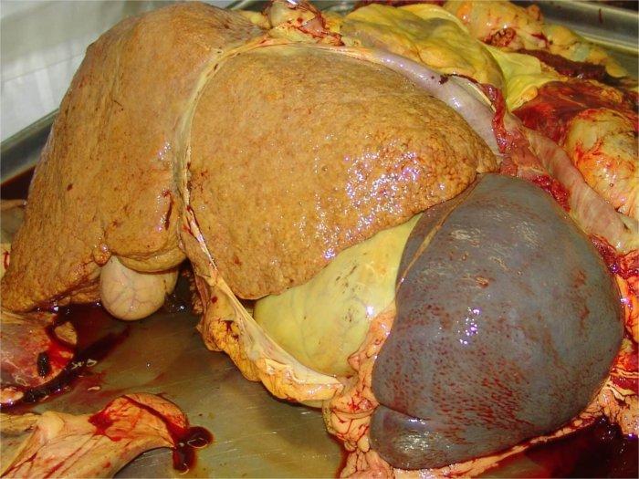 Признаки гепатита на печени
