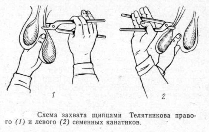 Метод кастрации