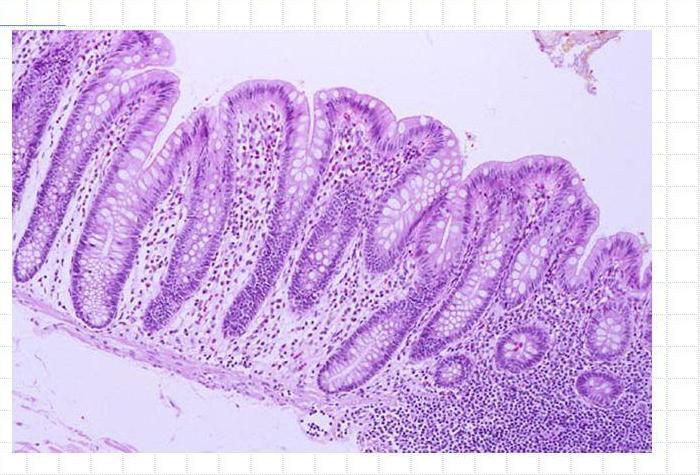 Эпителий толстого кишечника