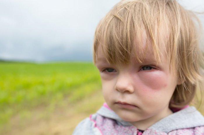 Крольчатина рекомендована детям с аллергией