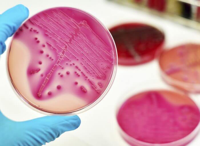Mycobacterium avium