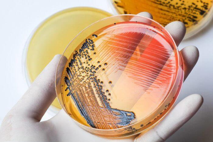 Разновидность сальмонеллёза – пуллороз