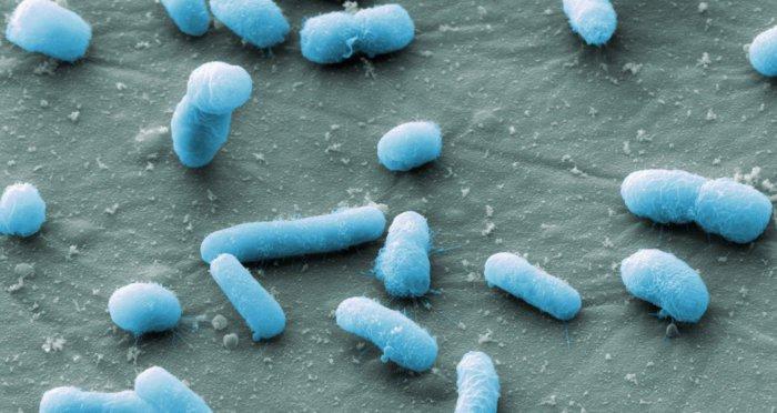 Колибактериоз вызывает кишечная палочка