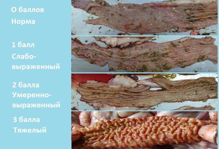 Балльная оценка поражений кишечника при илеите