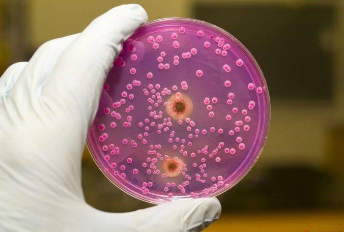 Бактерия пастерелла